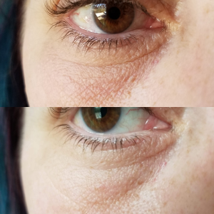 undereye_plasma_treatment_theupperhanddayspa